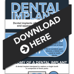 Dental Implants - What You Need To Know!