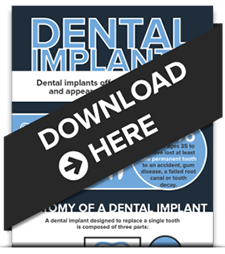Homepage preview of our Seattle dentist's free infographic about Dental Implants